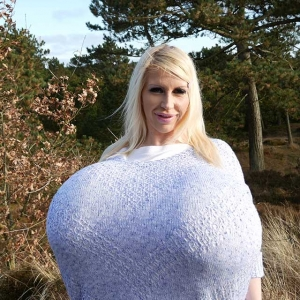 The largest surgical enhanced breasts